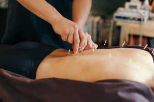 acupuncture session for back pain